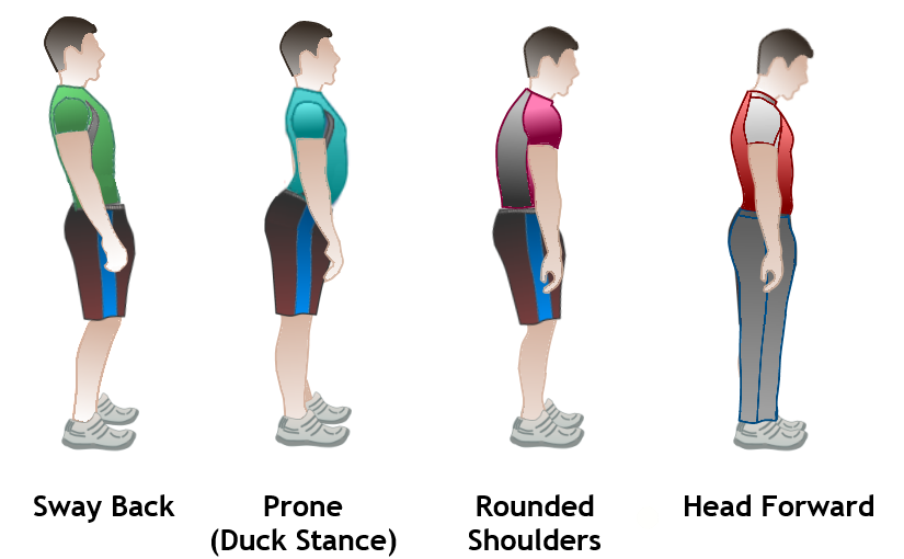 Four examples of poor posture